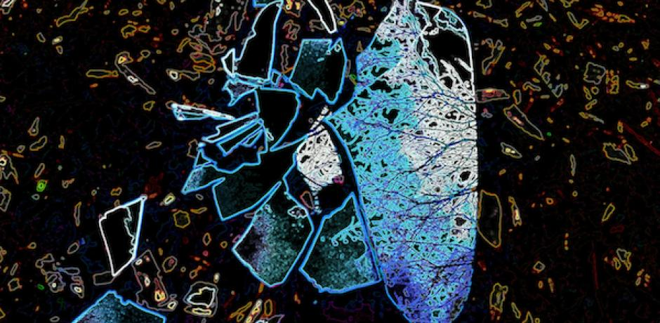 """""""Beauty of Broken"""" © Abbe Mogell; used by permission"""
